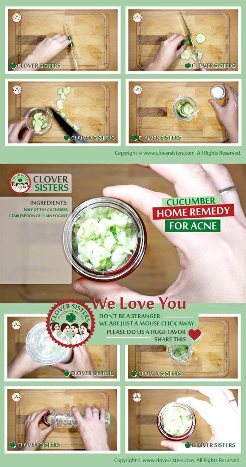 cucumber home remedy acne